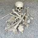 28 Piece broken bone skull